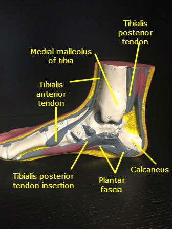 Foot Arch Pain And Tendonitis Helena Chiropractor Helena